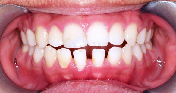 치아사이 비포