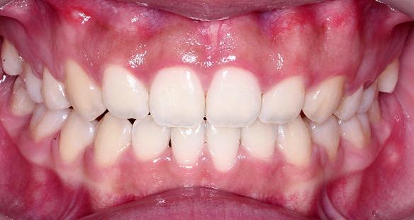치아사이 애프터